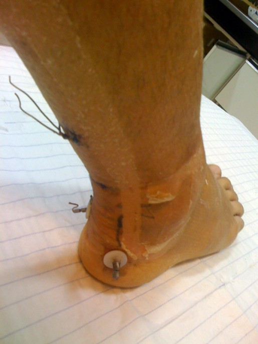 operation tendon